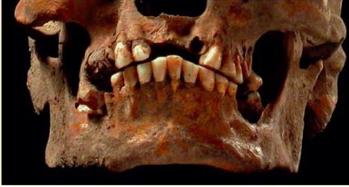 Teschio uomo paleolitico senza settore incisivi centrali